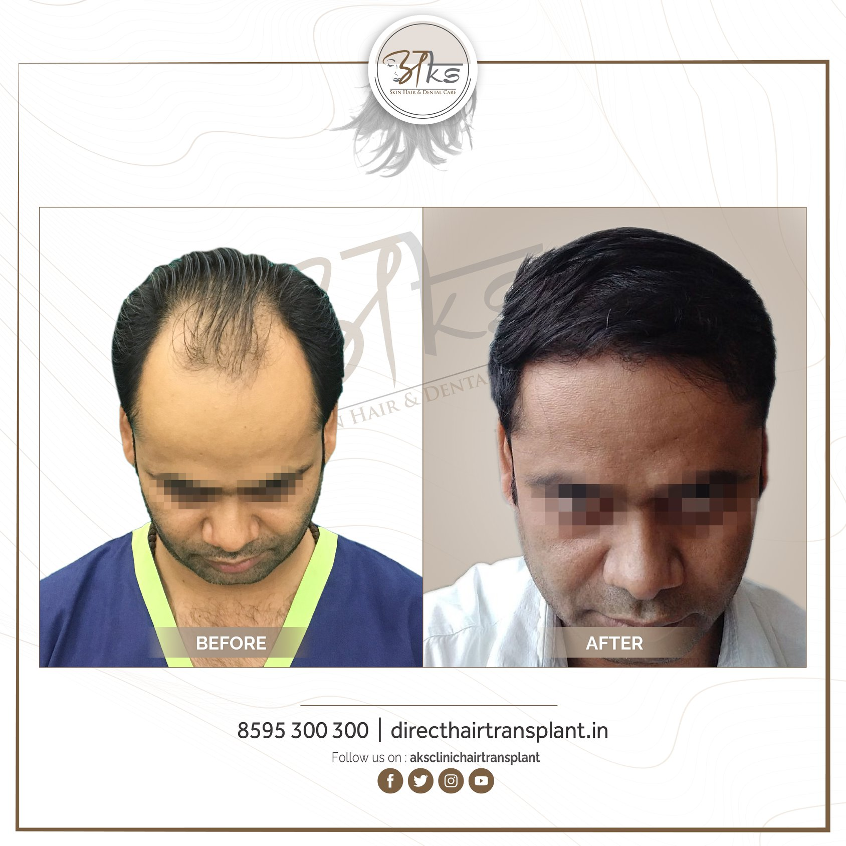 AKS Clinic - Hair Transplant Doctor Gurgaon | Premium Centre with Affordable Cost